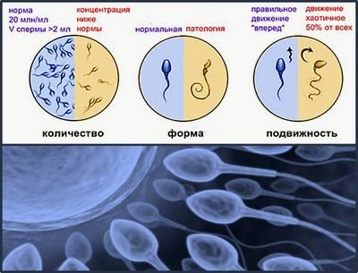 Воспалительные сперма